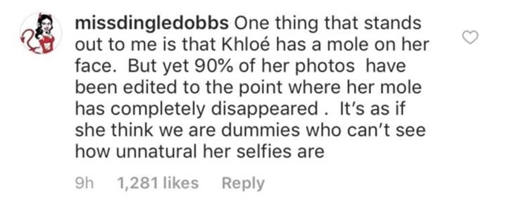 Khloe Kardashian photoshop fail mole on her face | Girlfriend